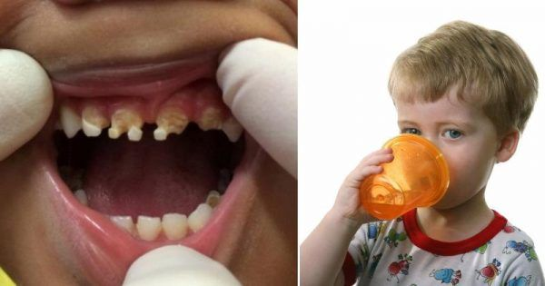 Some time ago, young children were visiting their dentists for a simple routine cleaning, but these days, children consume a tremendous sugar amount. This leaves them with tooth decay issues, and their rotting teeth need to be pulled out. Recently, a 3-year-old boy in New Zealand who consumed excessive amounts of sugar had to undergo […]