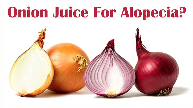 Discover how onion juice can be a great treatment for Alopecia or patchy alopecia to help stimulate the follicles and grow hair back