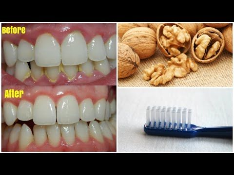 How To Get Rid Of Dental Plaque and Gum Disease Without Expensive Treatments! The sticky and colorless film of bacteria that constantly builds on the teeth is known as plaque. If you dont treat it it can continue building up and hardens into tartar. As a result this condition may trigger inflammation of the gum tissue or gingivitis. Luckily for us there are natural remedies for almost every condition. We present your one of the most popular and powerful natural remedy for a plaque.  Natural…