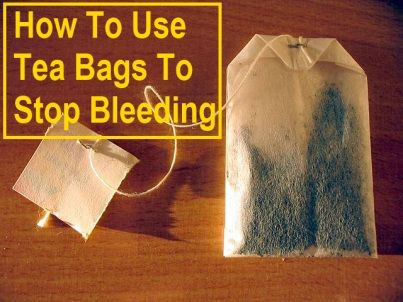 How To Use Tea Bags To Stop Bleeding