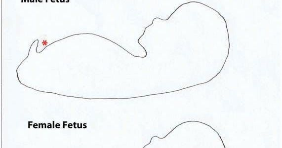 Most Of The Time Works Male Fetus At 12 Weeks Female Fetus At 12 Weeks Girl Ultrasound Pictures Baby Gender Prediction Baby Gender Ultrasound