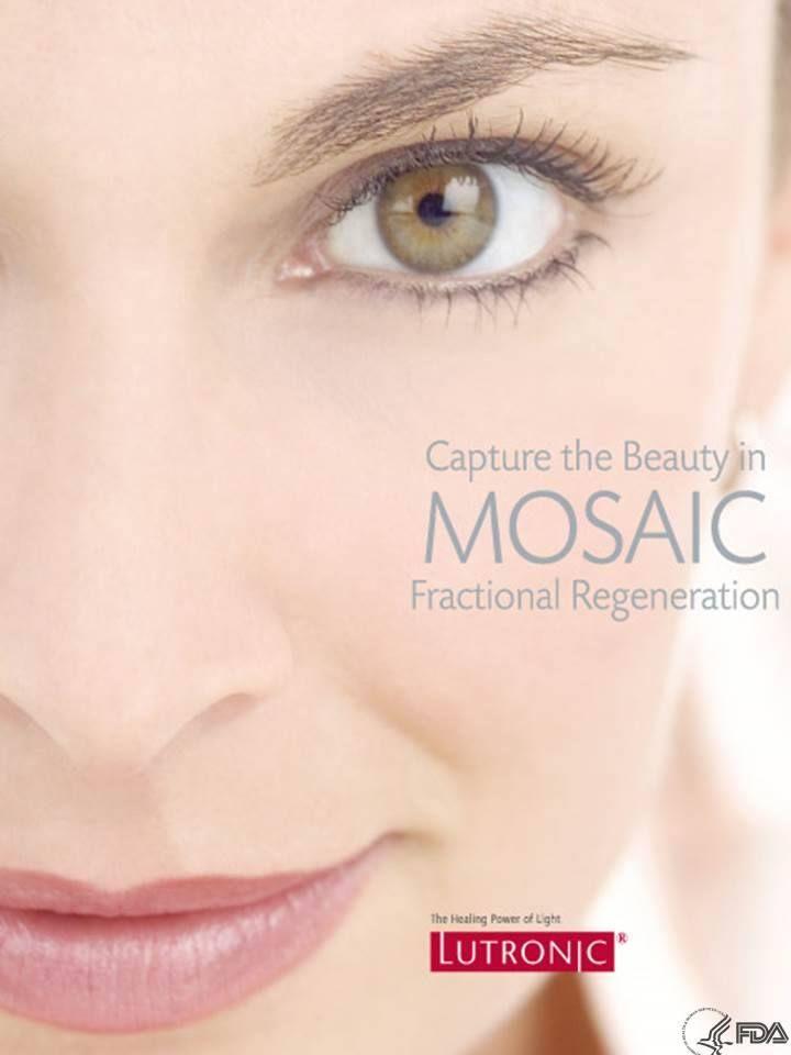 Mosaic™ Fractional laser Η θεραπεία με Mosaic™ Fractional laser είναι ό,τι πιο σύγχρονο στην ανάπλαση του δέρματος και αποτελεί τη νέα τάση στην αισθητική δερματολογία, προσφέροντας την πιο ολοκληρωμένη αισθητικά λύση. Ιδανικό για : Ανάπλαση και ανανέωση του δέρματος Εξάλειψη δυσχρωμιών, κηλίδων και πανάδων Αναζωογόνηση και σύσφιξη προσώπου, λαιμού και ντεκολτέ Βελτίωση της εμφάνισης των ρυτίδων Θεραπεία φωτογήρανσης Μείωση των διεσταλμένων πόρων www.medicalantiagingcenter.gr