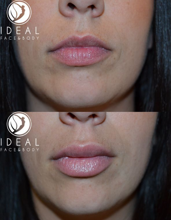Before and one month after lip augmentation filler with one