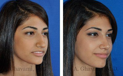 Rhinoplasty Before and After Gallery - Beverly Hills / LA