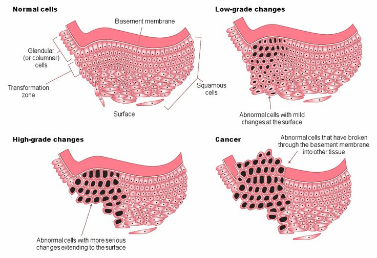 Abnormal Cervical Cells | Figure 6: Stages of abnormal cell changes. The cervical cells all sit ...