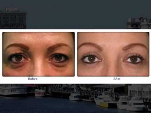 Dr. Deidra Blanks is a Wilmington NC plastic surgeon who focuses on facial plastic surgery. Some people have a little extra eyelid skin that reduces peripheral vision and insurance companies cover these treatments. For other people, they may feel like they could look younger and less tired. Dr. Blanks can help by removing skin from the eyelid and/or some of that puffiness below your eyes. wilmingtonface.com #wilmingtonAesthetic