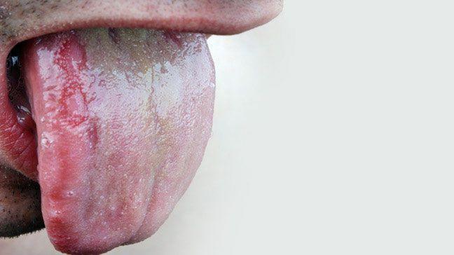 ¿Cómo consigo una infección de levadura en mi piel?
