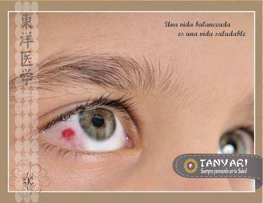 ¿Por qué suceden los derrames oculares?  Cuando uno de los vasos sanguíneos dentro del ojo se rompe, se genera una hemorragia que, debido a la delgadez y transparencia de la conjuntiva, la sangre que resulta no se absorbe, por lo que se que...Ver más — en  Tanyari Medicina Oriental - Google+