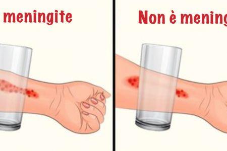 Ecco 8 sintomi della meningite che ogni genitore dovrebbe conoscere