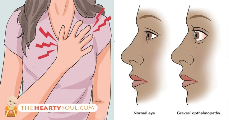 Grave's disease increases the risk of hyperthyroidism and goiters. Grave's disease is the most common cause of hyperthyroidism – a condition where the thyroid ...