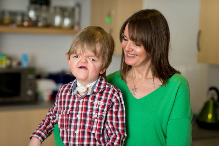 A discussion of the symptoms of apert syndrome in children