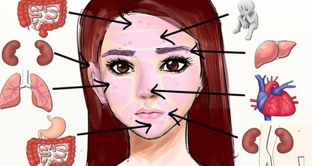 Les problèmes sur le visage indiquent des problèmes de santé, voici ce que la peau de votre visage dit de votre santé et comment y remédier.