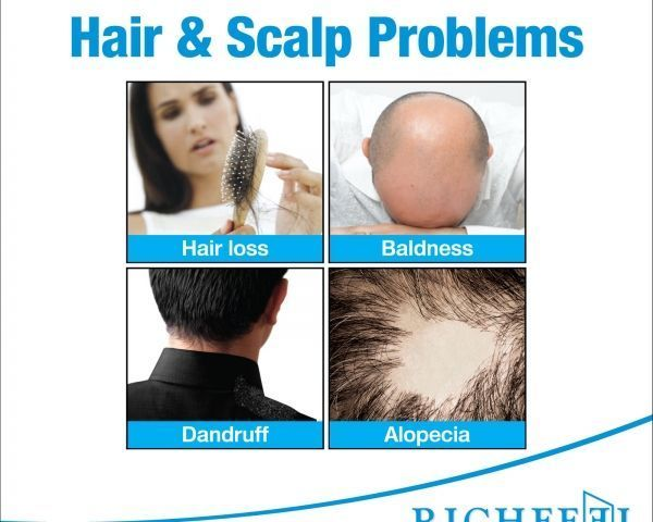 Richfeel Anagrow - Free Yourself from Hair problems