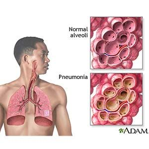 Pneumonia In Children (Aftercare Instructions) - Care Guide