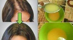 Appliquez ce Remède 2 fois par jour et vos cheveux repousseront à nouveau … Une Astuce Surprenante à base d'ingrédients naturels !!