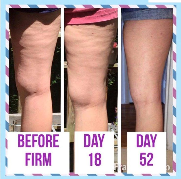 These incredible results! Message me for a free bottle! SierraPlayer89@gmail.com http://nerium.com/join/sierraplayer