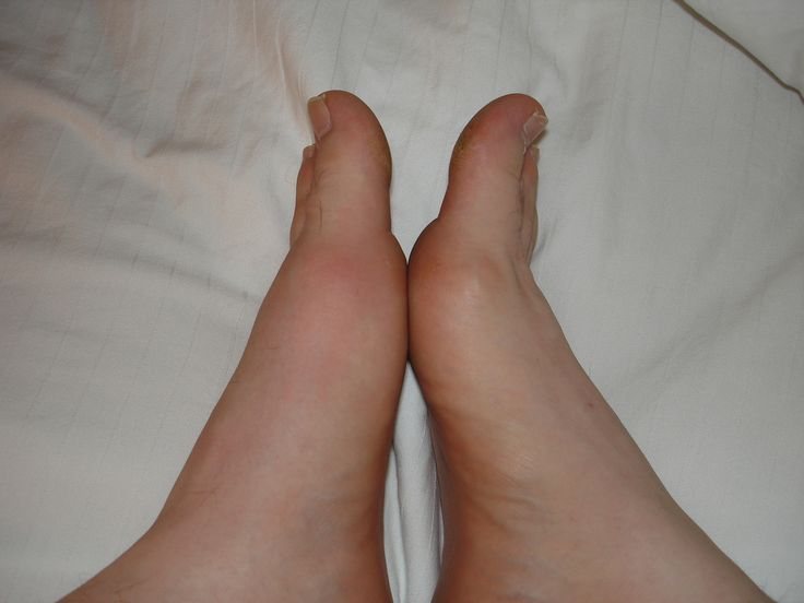 17 Best images about GOUT on Pinterest | Alkaline foods ...