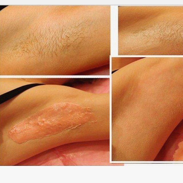 Хотите гладкую кожу без волос?Восковая депиляция- это удаление волос при помощи расплавленного воска. Слой расплавленного воска наносят на кожу, охлаждают и сдирают вместе с волосами. Кожа становится гладкой и дальнейший рост волос замедляется.отвечу на все вопросы! #batyam #israel #cosmetology #telaviv #косметолог_батям #косметолог_тельавив #депиляция #восковаядепиляция #уходзасобой http://tipsrazzi.com/ipost/1520564300015283198/?code=BUaISywjSv-