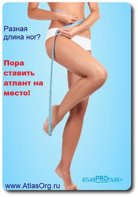 ✔ На планете земля более чем у 90% людей разная длинна ног. Вы об этом знали? Если вы думаете, что это нормальное состояние, то совсем нет.  Есть основная и главная причина, которая была выявлена около 20 лет назад. Хотя до сих пор для исправления этого у нас используют аппарат Илизарова, операции по наращиванию или обрезанию костей. Ну конечно вы можете просто подложить стельку потолще под более короткую ногу или сделать каблук повыше.  Однако всё это исправить можно исправить.