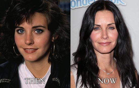 Pin On Celebrity Before After