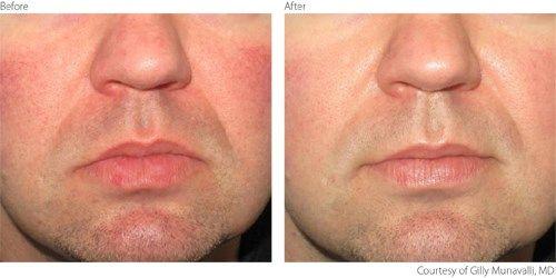Ipl Lumenis M22 Before And After Rosacea Elite Laser