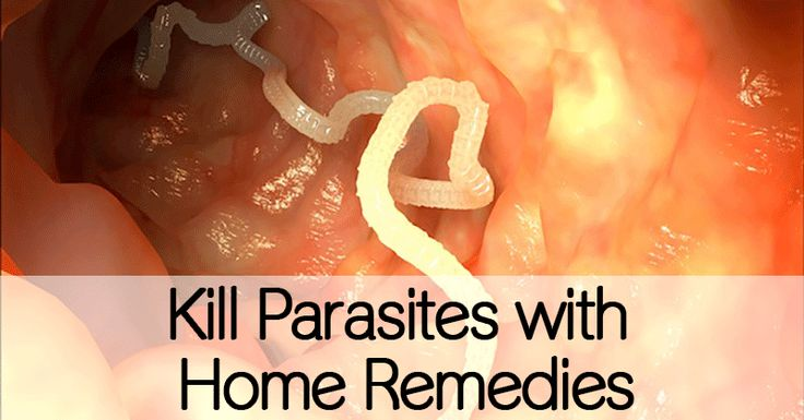Kill Parasites with Home Remedies - Healthy Holistic Living.. wow maybe 50% of Americans have these.. EEK!
