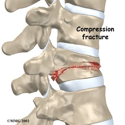 Symptoms of a Spinal Compression Fracture http://www.webmd.com/osteoporosis/guide/spinal-compression-fractures-symptoms