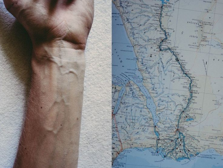 MAP- VEINS. THIS is why our bodies don't need tattoes. Our bodies are already a beautiful, unique work of art. ~MK