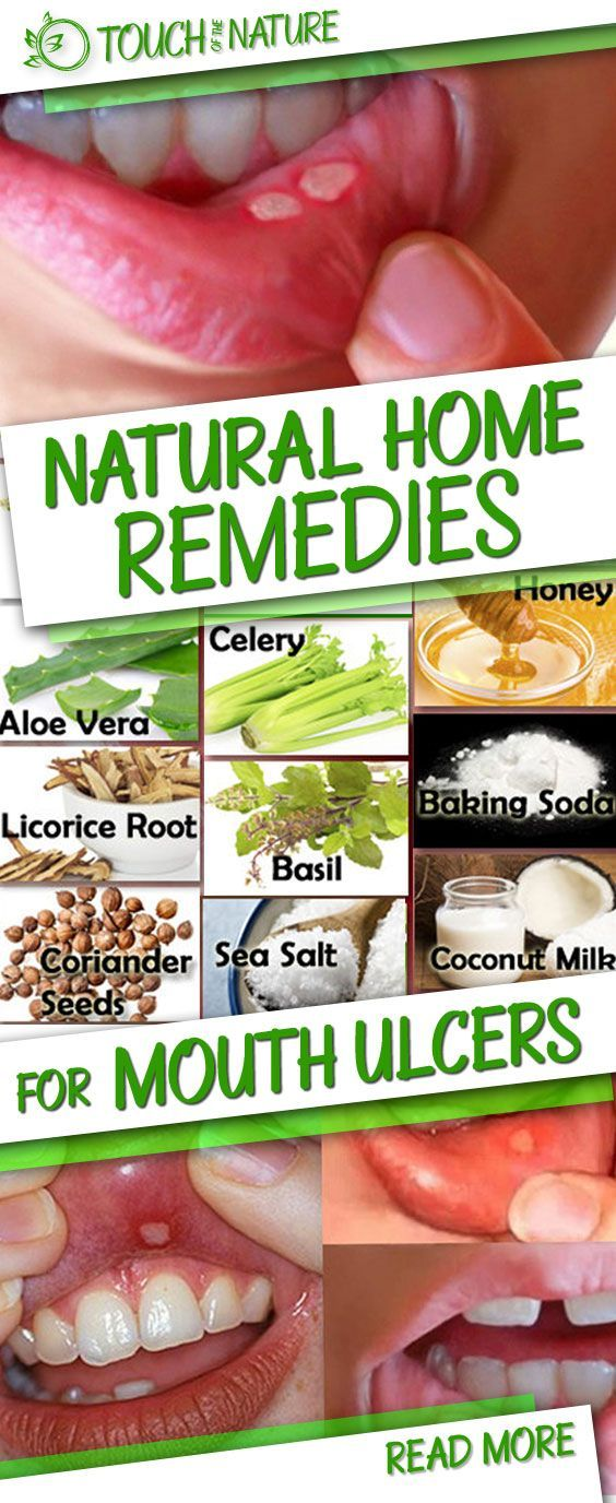 Natural Home Remedies for Mouth Ulcers