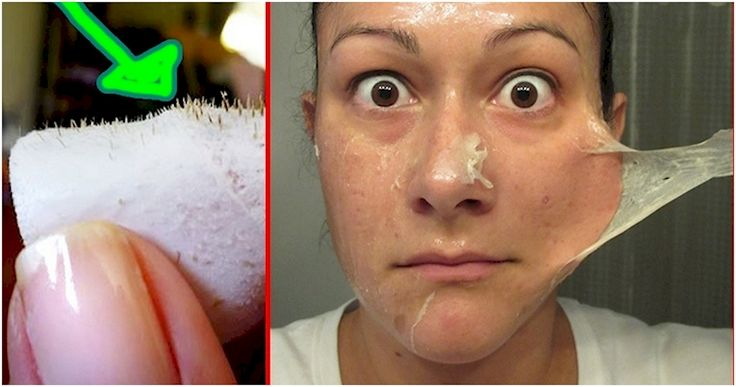 How To Remove Blackheads Using Only 2 Ingredients