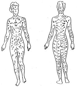 Lymphatic massage can help to unblock the lymph system by manually cleansing the lymph system in a clockwise fashion.  Performing lymphatic massage correctly can stimulate the opening of the initial lymphatic and increase the volume of lymph flow by as much as 20 times.  Because lymph cleanses nearly every cell in your body the negative effects of chronic lymph blockages include but are not limited to: