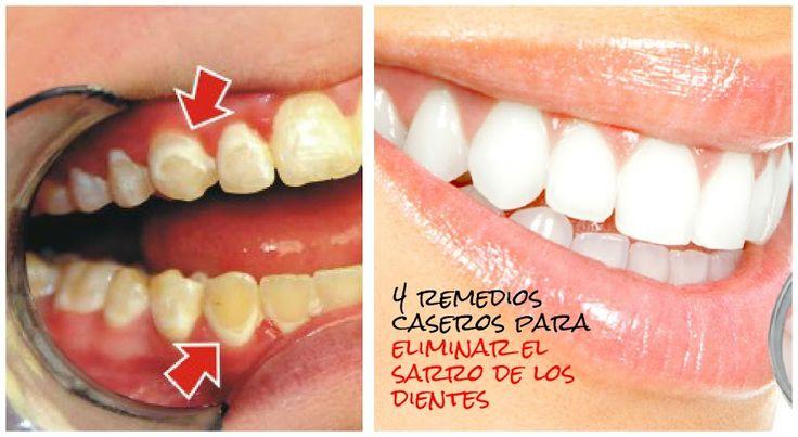 4 Maneras de eliminar el sarro de los dientes
