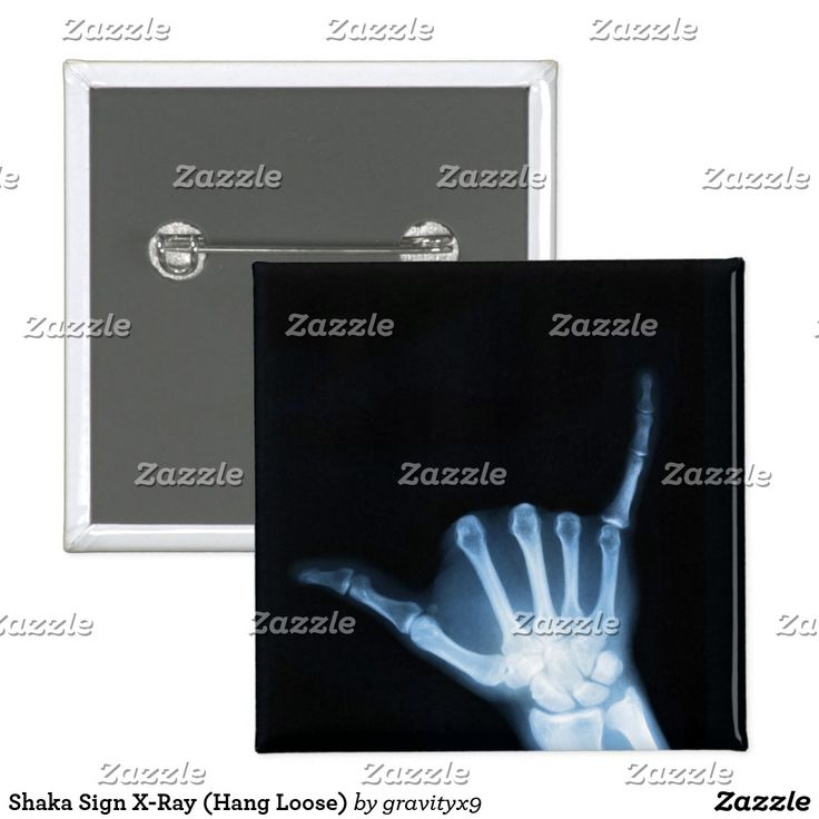 Shaka Sign X-Ray (Hang Loose) Button - Time to PARTY ON! ~ Blue x-ray of the 'hang loose' Shaka hand sign pin back button is available in round or square. Add your text to personalize. by Gravityx9 Designs