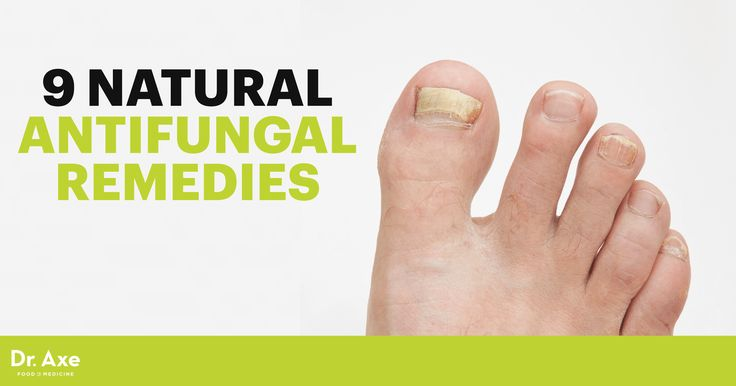 Antifungal medications, such as an antifungal cream, are often overprescribed and dangerous. Check out these 9 natural antifungal remedies instead.