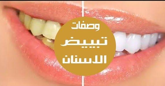 تبيض الاسنان الصفراء في المنزل أصبحت ثقافتنا مفتونة بشكل متزايد بالأسنان البيضاء مع قصص إخبارية أمامنا كل يوم تظهر لنا المشاهير بأسنان بيضاء لامعة جدا يبدو Lrg