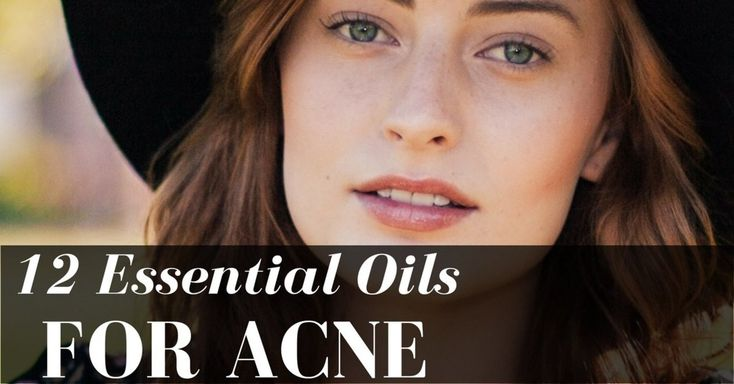 Back Acne Treatment - Remove Back Acne the Safe Way ** Check out this great article. #facial