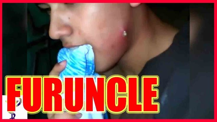 """LARGE FURUNCLE ON THE FACE (big hole after removal) """"dr. pimple"""""""