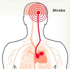 Do you know which stroke risk factor this graphic represents? You can find out by viewing the stroke risk factor animated slide show. In just 15 minutes you can learn about 26 stroke risk factors.