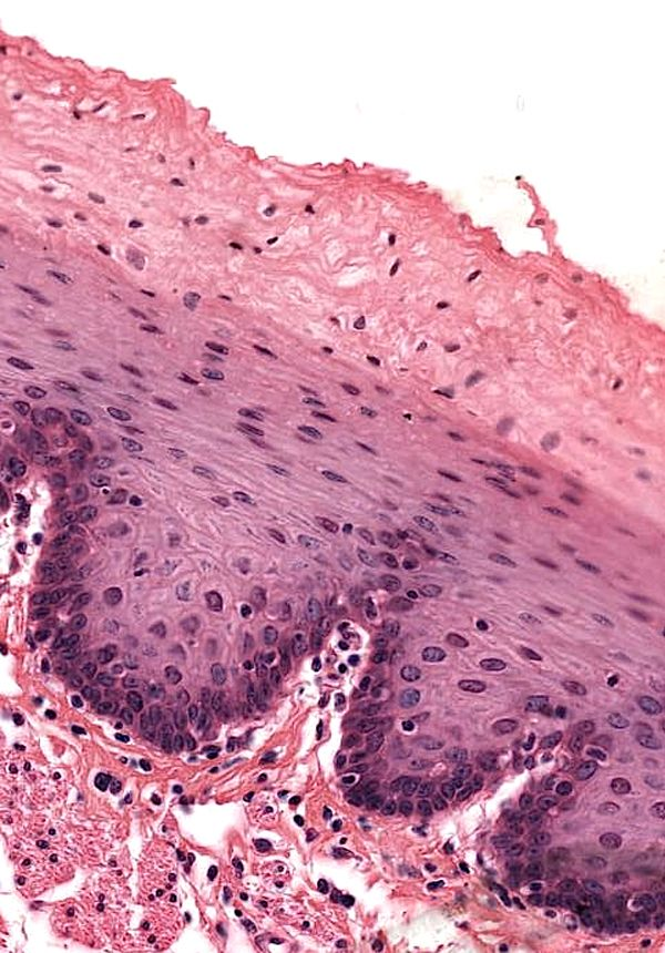 Esophagus-Nonkeratinizing stratified squamous epithelium