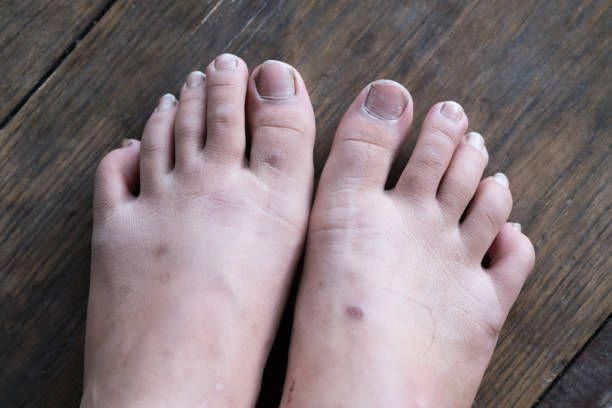 How Long Does It Take To Cure Toenail Fungus With Apple Cider Vinegar-Fungal Toenail Treatment #yellowtoenailfungustreatment