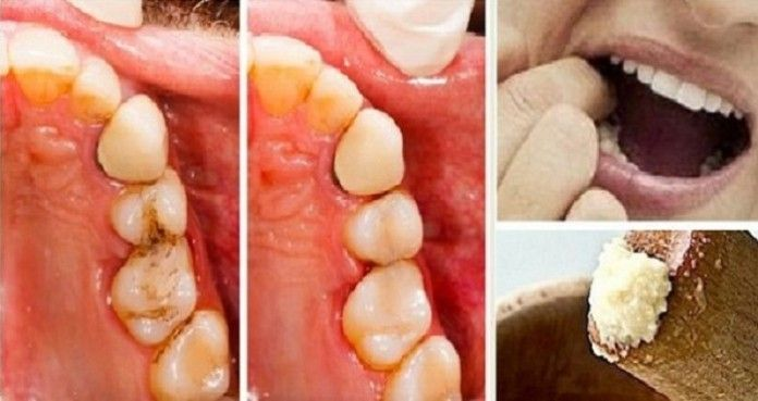 Vyliečte zubný kaz a zastavte bolesť zubov bez návštevy zubára pomocou tohto úžasného lieku! - Báječný lekár