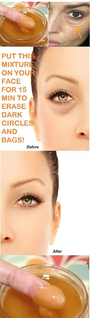 PUT THIS MIXTURE ON YOUR FACE FOR 15 MIN TO ERASE DARK CIRCLES AND BAGS
