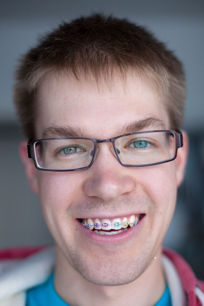 how to look good with braces and glasses
