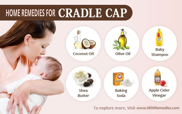 Home Remedies for Cradle Cap Herbal Medicine and Home