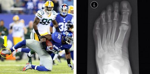 #Giants linebacker #JonBeason was #injured in offseason OTAs last week, suffering a foot fracture and torn ligament. Beason will miss training camp but hopes to recover in time for the start of the season. #NFL #injured http://insideinjuries.com/jon-beason-foot-fracture/