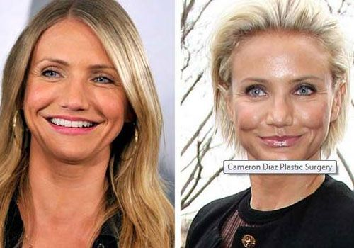 Even Cameron Diaz never confirmed anything about plastic surgery rumor people accused this woman may it overdoing plastic surgery especially for botox and facelift.