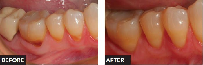 """Have you noticed notching or pitting on your #teeth near the gum line? You are not alone! Decay in this area (called the """"cervical"""" portion of the tooth) is extremely common, particularly in patients over the age of 25. Take a look!  #ThousandOaksDentist"""
