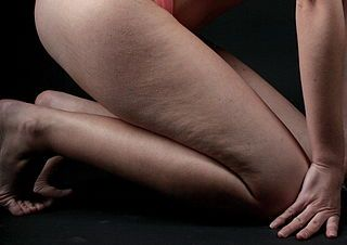 3 remedios caseros para eliminar la celulitis en las piernas