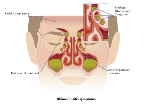 Nasodren for sinusitis treatment : RHINOSINUSITIS, an inflammatory process of the mucosa of the nasal fossae and one or more of the various paranasal sinuses (maxillary, frontal, ethmoid and sphenoidal). The inflammation in the sinuses gives rise to a loss of drainage through the ostium, leading to an accumulation of mucosity and a subsequent increased sensation of congestion.  https://www.facebook.com/nasodrensinusitis | nasodren