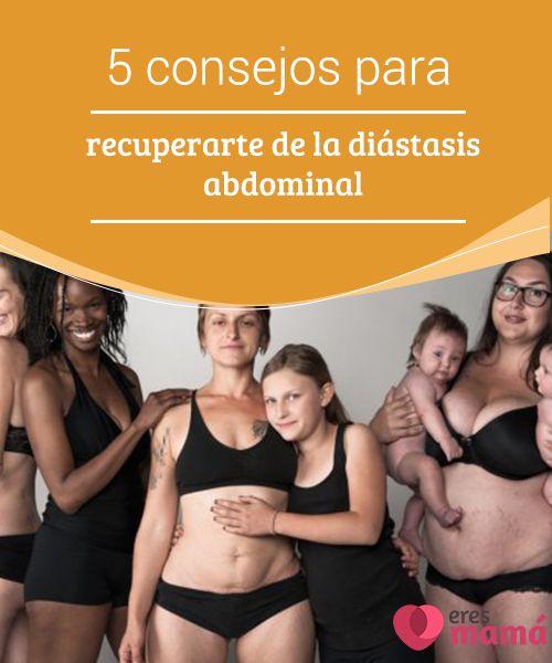 5 consejos para #recuperarte de la diástasis abdominal La #diástasis #abdominal ocurre a todas las mujeres durante el #embarazo. Sin embargo, a algunas les #afecta con mayor severidad que a otras